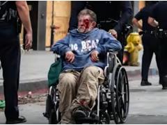 全球报道:美国流浪汉遭警方橡皮子弹击中 满脸是血