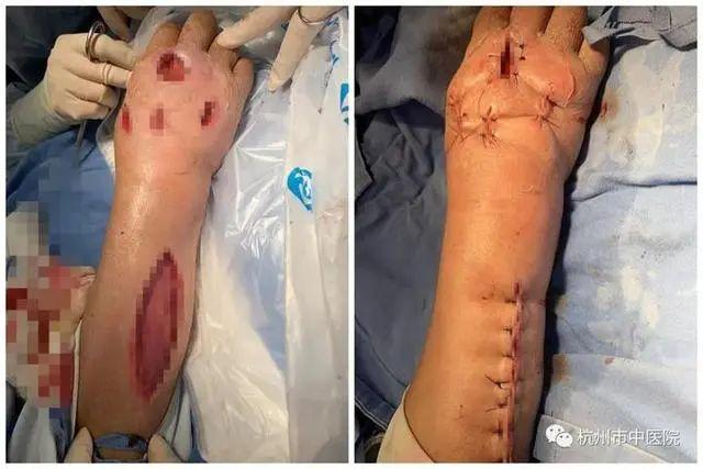 广西女子处理猪肉时被刺破手指,4天后患上罕见病,全球仅450例